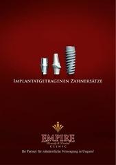 implant prospekt 2012